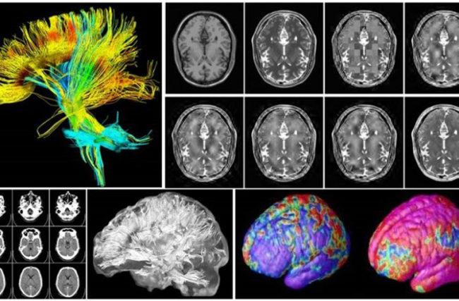 Meditação muda a mente e a estrutura física do cérebro